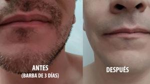 Rasuradora Philips antes y despues